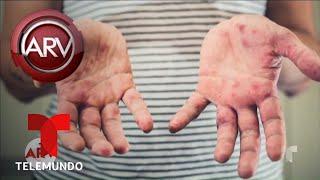 Estado de emergencia por brote de sarampión en NY | Al Rojo Vivo | Telemundo