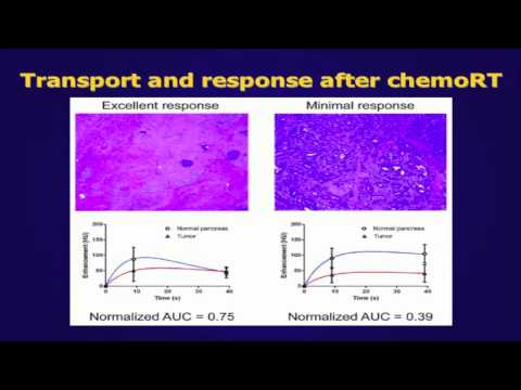 Pancreatic cancer properties describe gemcitabine response