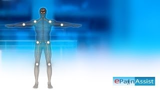 Fibromyalgia Explained! Learn About 11 Tender Points, Symptoms, Causes of Fibromyalgia - YouTube
