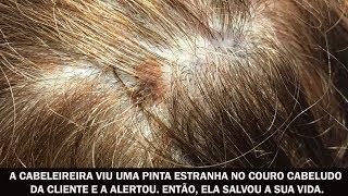 A cabeleireira viu uma pinta estranha no couro cabeludo da cliente e a alertou. Então, ela salvou a sua vida.E-mail para contato: noticiascompartilhaveis@gmail.comCurta a página no Facebook: https://www.facebook.com/noticiascompartilhaveis