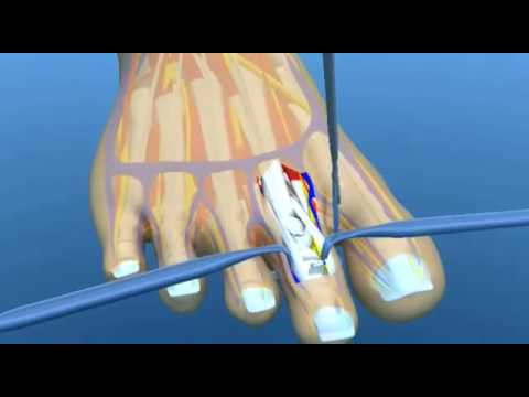 An Animation Explaining Claw Toe