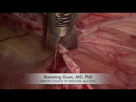 Tips for Successful Laparoscopic Lysis of Adhesions and Enterolysis