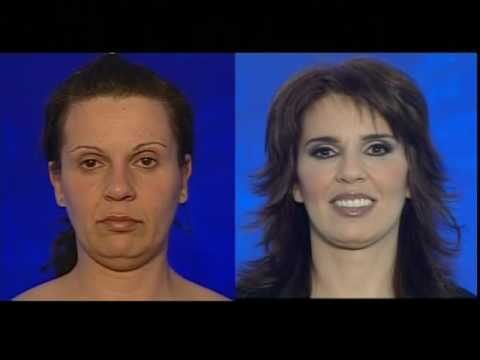 MACS facelift, Κοιλιοπλαστική Ανόρθωση Στήθους