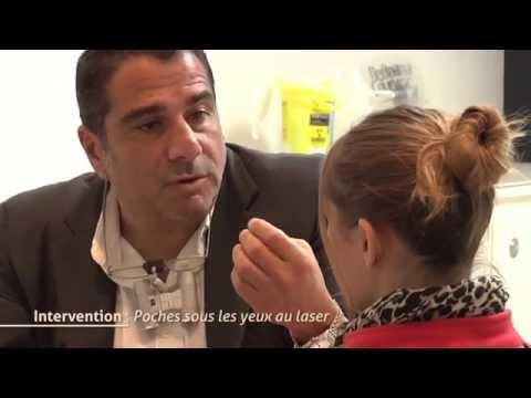 traitement poches yeux - Plus d'infos sur: http://www.drhayot.com/paupieres/poches-sous-les-yeux.html Spécialiste du rajeunissement du regard à Paris, je vous apporte une solution ef...