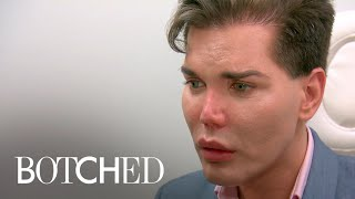 """Video Dr. Paul Nassif Says Patient's Nose """"Could Fall Off"""" 