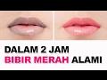 Cara cepat Memerahkan Bibir Hitam dalam 2 jam