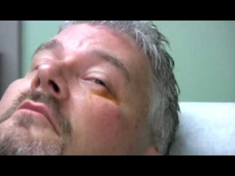 Chalazion Injection Demonstration