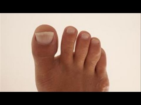 Toenails Yellow – How To Remedy Yellow Toenails