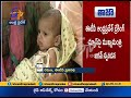 CM Jagan Responds on ETV Story | Orders Emergency Treatment to 8 Months Baby