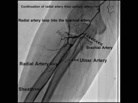 Anomalous Origin of Right Radial Artery During Routine Coronary Angiogram