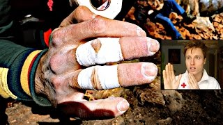 Climbing Related Finger Injuries : Treatment by Mani the Monkey
