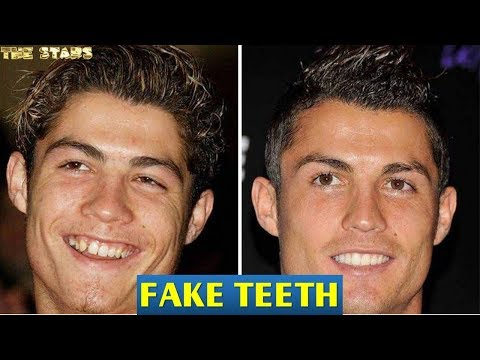30+ Celebrities With Fake Teeth  ★2018