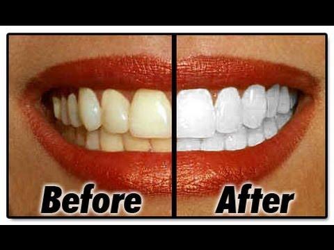 TÉLÉ 24 LIVE- SANTÉ: Comment réaliser un blanchiment de dents de façon naturelle en quelques minutes