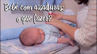 Fica a Dica - Bebê com assaduras: o que fazer?