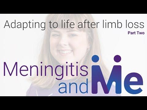 Meningitis & Me: Adapting to life following limb loss due to meningitis / septicaemia (Part 2)