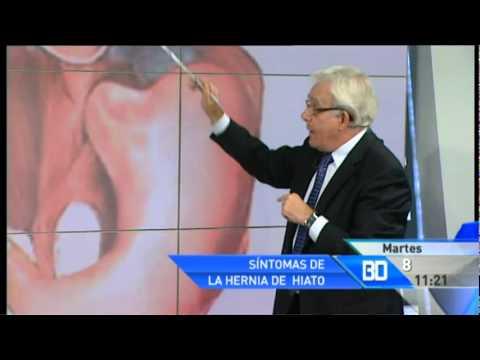 La hernia de hiato