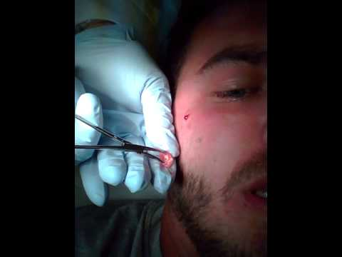 Facial Cyst Removal
