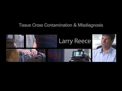 Tissue Cross Contamination & Misdiagnosis: Larry Reece