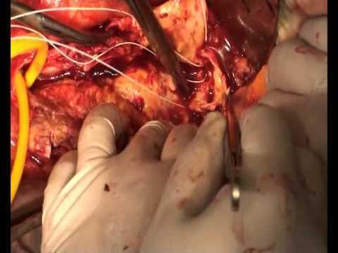Резекция аневризмы брюшного отдела аорты - часть 2