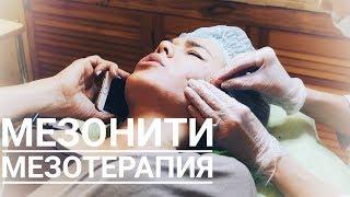 Мезотерапия волосистой части головы и мезонити. Встреча с Оксаной после 3-х летнего перерыва