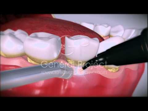 Dental Laser System 4x4