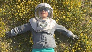 Meet Boy Allergic to the Sun