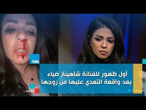 """شاهد اللقاء الكامل مع شاهيناز في برنامج """"رأي عام""""..تفاصيل تعرضها للضرب"""