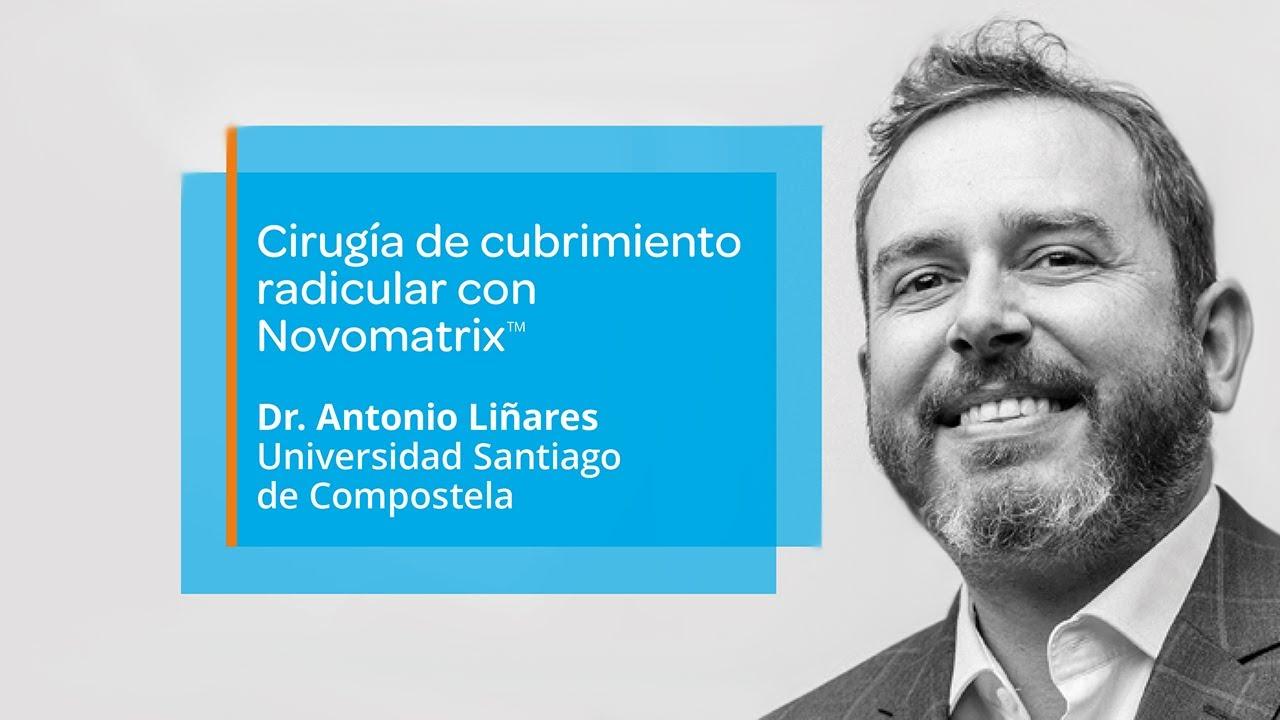 Cirugía de cubrimiento radicular con Novomatrix