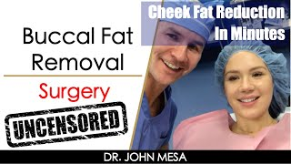 Video Buccal Fat Removal Surgery for Slimmer Face in Minutes by Dr. Mesa (Surgery Description) Bichectomia MP3, 3GP, MP4, WEBM, AVI, FLV November 2018