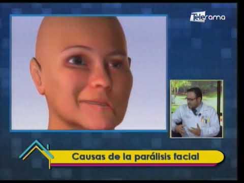 Causas de la parálisis facial