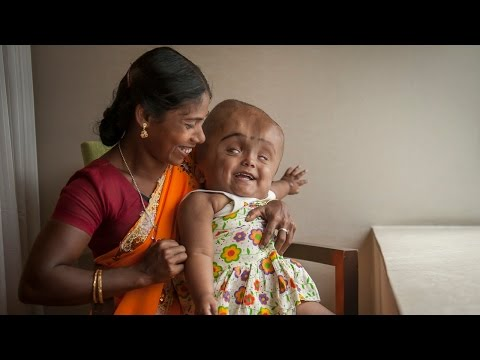 BABY - Swollen Head Baby: Roona Begum's Incredible Journey SUBSCRIBE: http://bit.ly/Oc61Hj A TODDLER whose head swelled to three times its natural size is undergoing a dramatic resurgence. Three-year-o...