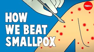 How we conquered the deadly smallpox virus – Simona Zompi