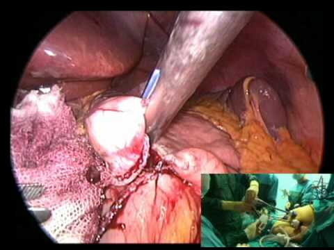 Laparoscopic Mini Gastric Bypass Surgery