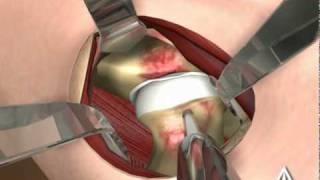 Douleur de hanche de l'adulte jeune : le conflit de hanche, Traitements kiné, chirurgie