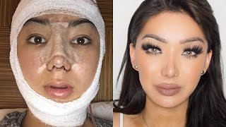 Video My Facial Plastic Surgery Story! | Dragun MP3, 3GP, MP4, WEBM, AVI, FLV November 2018