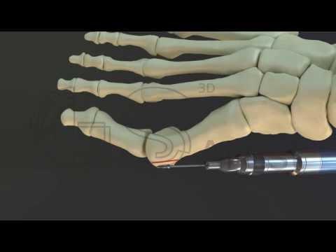 bunion surgery 3D
