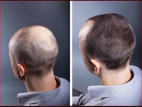 Генеролон от выпадения волос отзывы
