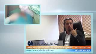 Op. Dr. Mustafa Ali Yanık açık teknik ve kapalı teknik burun estetiği arasındaki farklar nelerdir