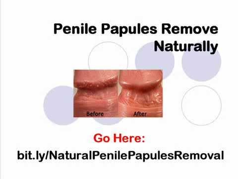 Papules go away penile How long