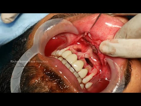 Painful Cyst Removed from Mouth - Surgical Method
