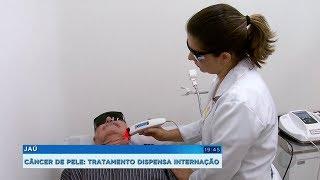 Índice de cura do câncer de pele passa dos 90% com o uso da terapia fotodinâmica