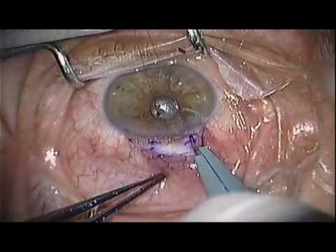 Ex-Press Shunt Glaucoma Surgery