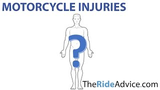 Where You'll Be Injured In A Motorcycle Accident