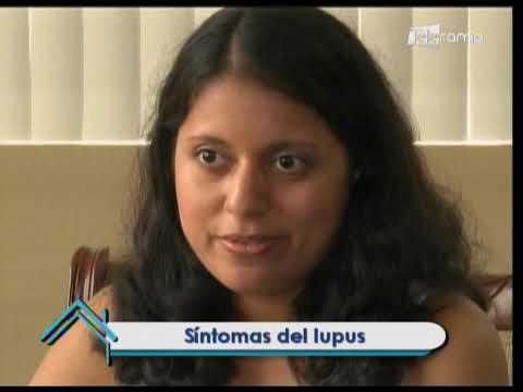 Tratamientos contra el lupus