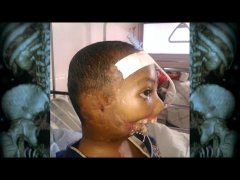 Video Body Bizarre 4: il a été attaqué par une hyène. download in MP3, 3GP, MP4, WEBM, AVI, FLV January 2017