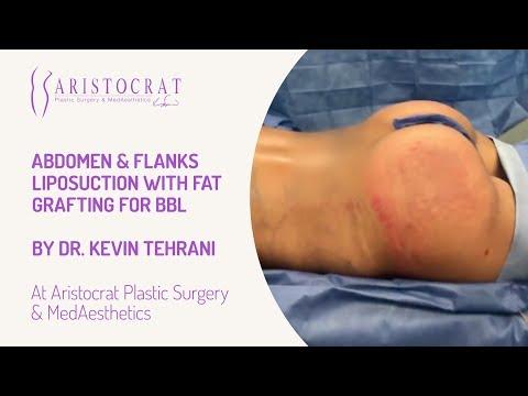 Abdomen & Flanks Liposuction with Fat Grafting for BBL Long Island, New York by Dr. Kevin Tehrani_A plasztikai sebészet kulisszatitkai. A legmodernebb eljárások, és orvosi hibák. Szilikon völgy