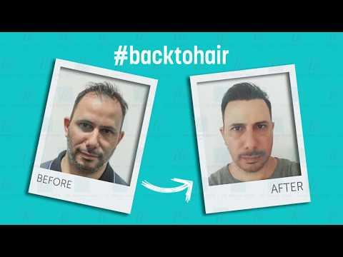 Hair Transplant Before After I Dr. Serkan Aygin Clinic_A plasztikai sebészet kulisszatitkai. A legmodernebb eljárások, és orvosi hibák. Szilikon völgy