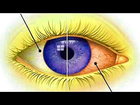 Глаз человека при близорукости. Секрет раскрыт!