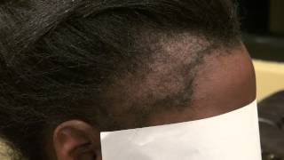Video African American Woman Bald Hairline Transplant Restoration Dr. Diep www.mhtaclinic.com MP3, 3GP, MP4, WEBM, AVI, FLV Agustus 2018