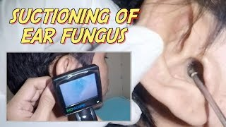 Man complains of ear pain ,itchiness and severe  discomfort in the affected ear. Fungal infection or otomycosis was the culprit. Suctioning of the fungal debris was performed .Please give a thumbs up for this videoDon't forget to comment and subscribe.Click here to SUBSCRIBE:https://www.youtube.com/channel/UCAxplrfzotx7p03CHj9Nvbw